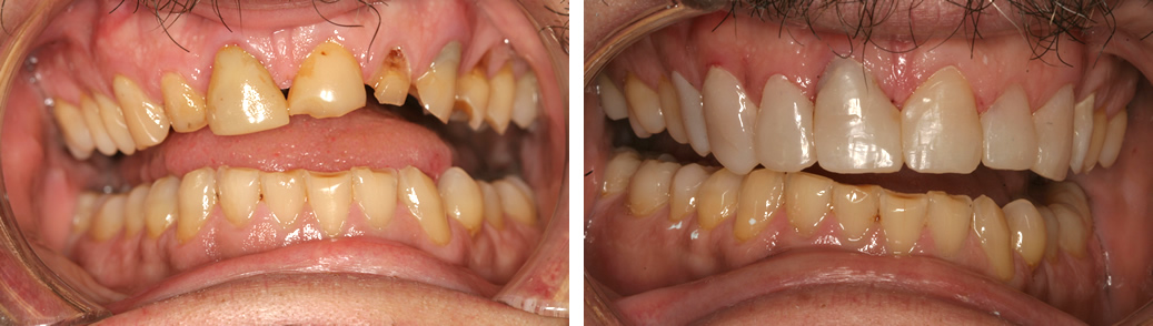 Before and After Composite Bonding Photo
