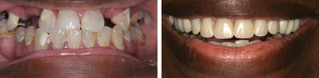 Before and After Dentures Photo