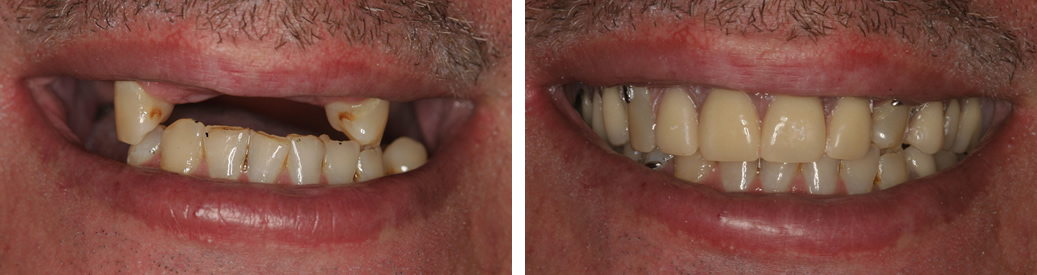 Before and After Partial Dentures Photo
